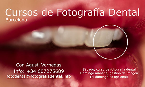 curs-foto-dental-bcn-2016-10-b-mini.jpg
